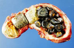 bile stones
